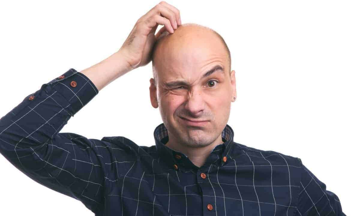 Confused bald man
