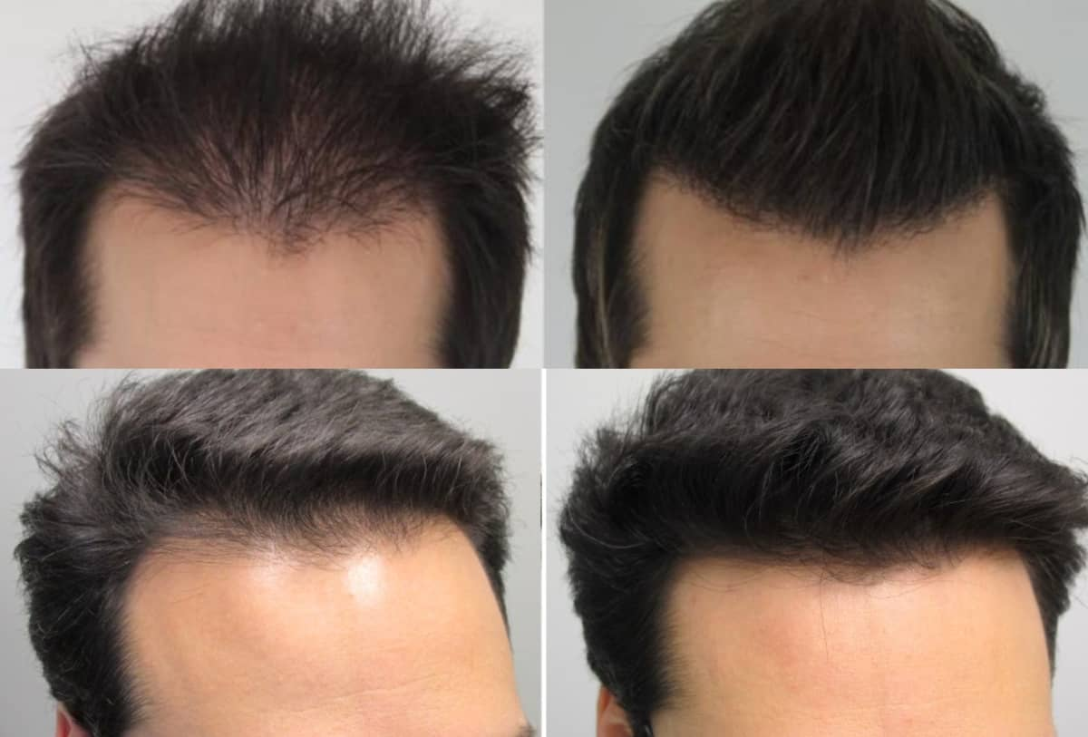 Hair Thickening fibers results