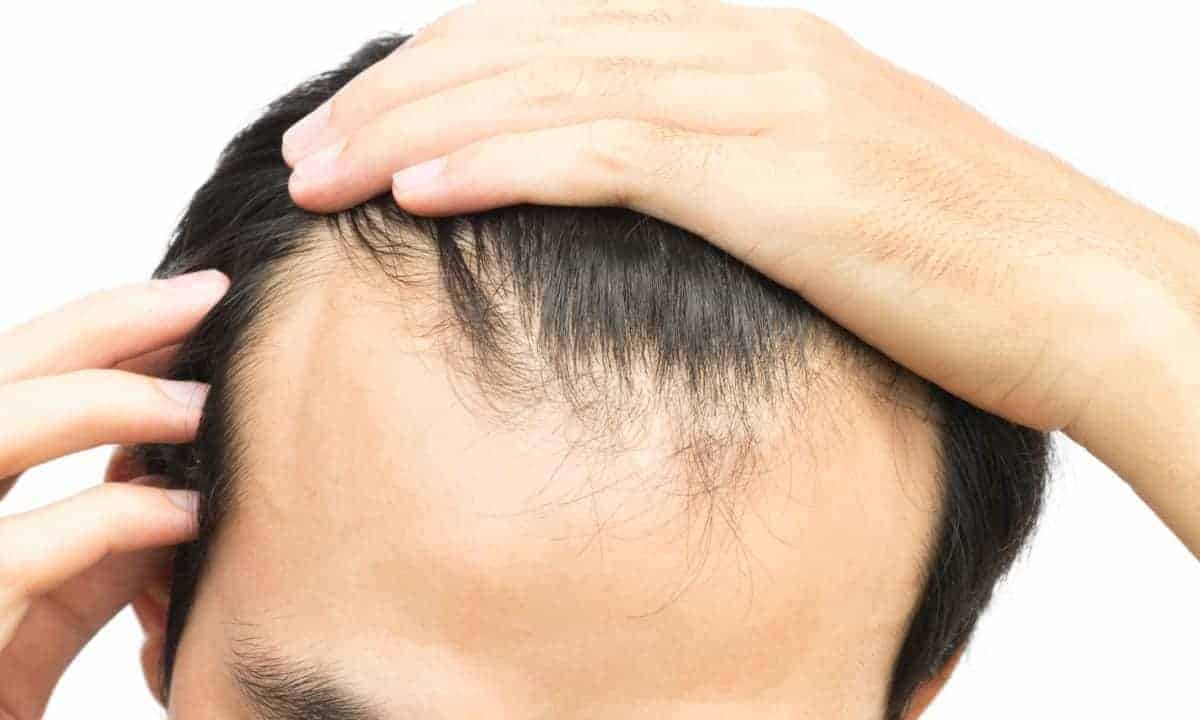 Young man pulling back his receding hairline. Knowing how bald you are will help you choose the right treatment options available to you.
