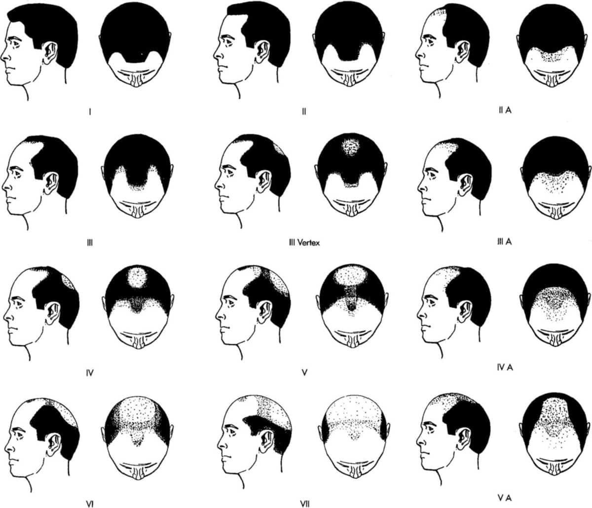 Hair loss Norwood scale for men. Use it to find the stage and severity of your balding.