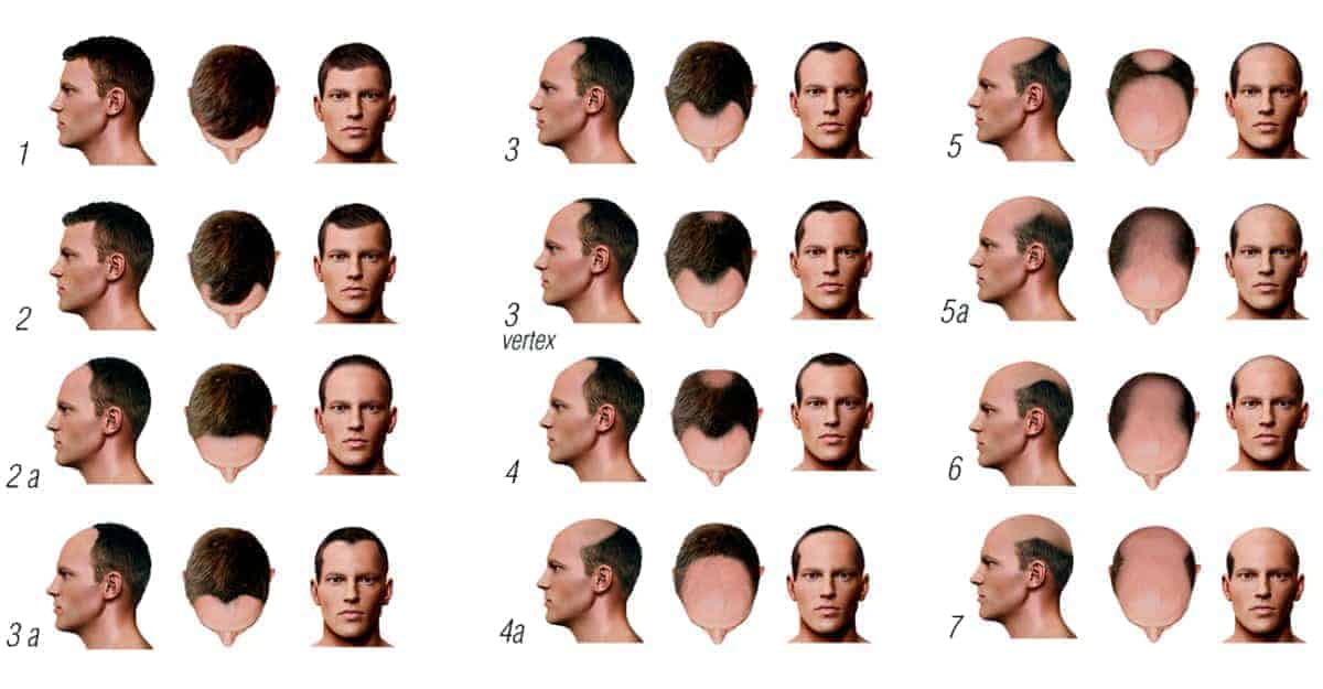 Norwood Scale for measuring male baldness