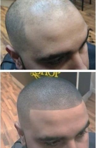 TooManly FULLER Hair Fibers Before After
