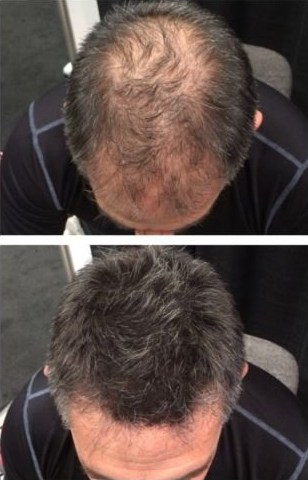 TooManly FaULLER Hair Fibers - Before and After
