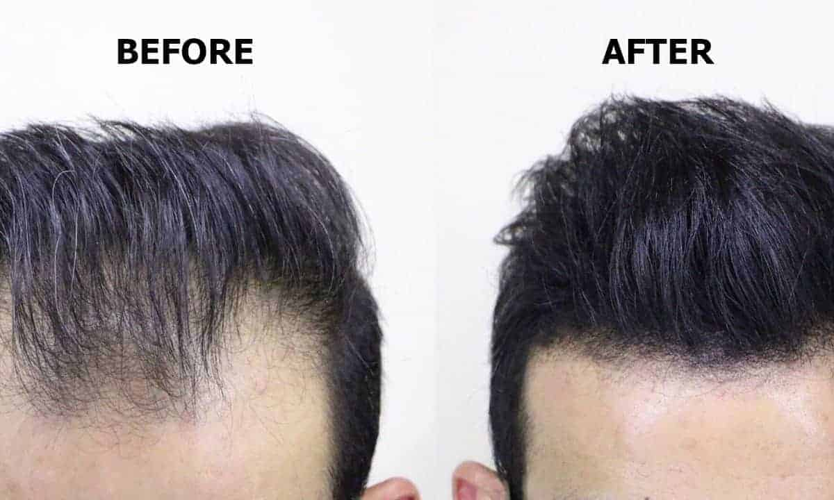 Using Hair Fibers Before And After