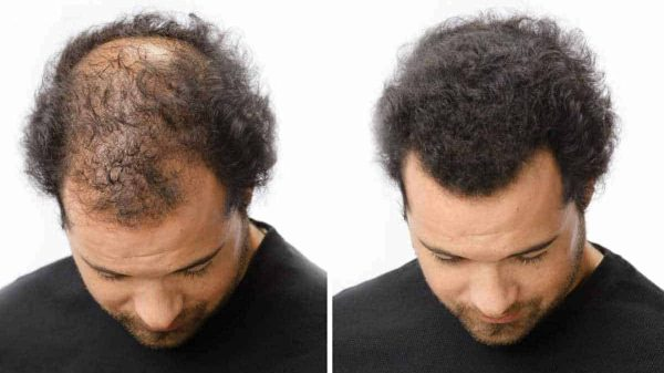 Too Manly Fuller Hair Fibers - Before After